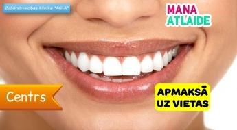 """Профессиональная гигиена полости рта всего за 19.90€ в медицинском центре """"AG-A""""!"""