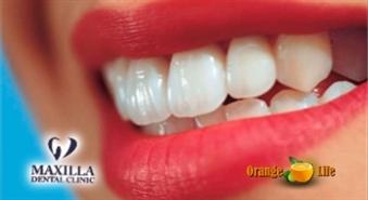 Lai Tavs smaids būtu neaizmirstams! Profesionāla mutes dobuma higiēna no «Maxilla dental clinic» ar atlaidi 43%, tikai par 19,90 LVL