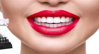 """Kompozīta venīru uzstādīšana ar sistēmas """"Uveneer"""" palīdzību zobu formas un krāsas korekcijai ar 40% atlaidi. NEMAKSĀ VISU UZREIZ!"""