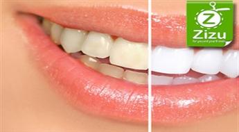 Инновационное фотоотбеливание зубов с профессиональным гелем Whitewash Professional Teeth Whitening со скидкой -69%!