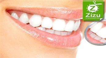"""Atlaide līdz 66% zobu ārstēšanai, higiēnai un protezēšanai stomatoloģiskajā klīnikā """"Horta""""!"""