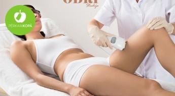 Likvidē matiņus ātri un uz ilgu laiku! Lāzerepilācijas procedūra ar 50% atlaidi virslūpai, padusēm, rokām, kājām vai bikini zonai
