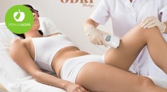 Likvidē matiņus ātri un nesāpīgi! Fotoepilācijas procedūra sejai, bikini vai ķermenim! Rezultāts saglabāsies līdz pa 5 gadiem